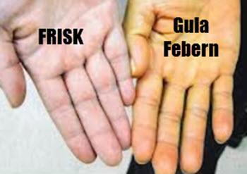 fula feber hand